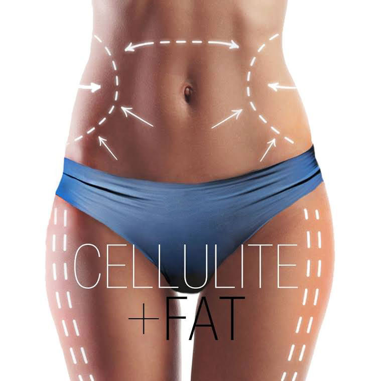 Sculpt Away fat removal San Antonio