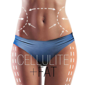 Cellulite treatment in San Antonio