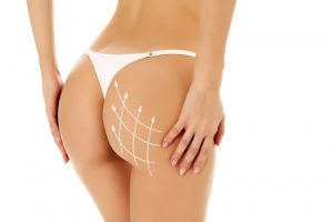 liposuction alternatives san antonio - Sculpt Away