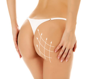 Non-Surgical Brazilian Butt-Sculpt San Antonio