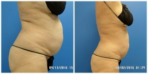 Non invasive lipo - Sculpt Away San Antonio