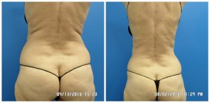 Non surgical lipo San Antonio - Sculpt Away