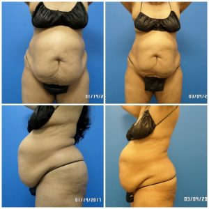 liposuction San Antonio - Sculpt Away