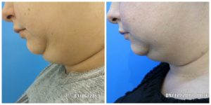 double chin, sculpt away