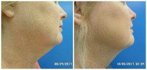 Sculpt Away San Antonio face beauty medical services