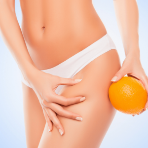 New Treatment for Cellulite