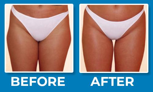 Cellulite-Sonic Sculp Legs Treatment