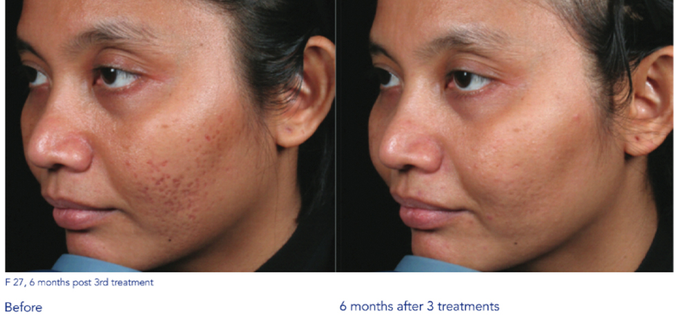 San Antonio Microneedling with radiofrequency - Sculpt Away