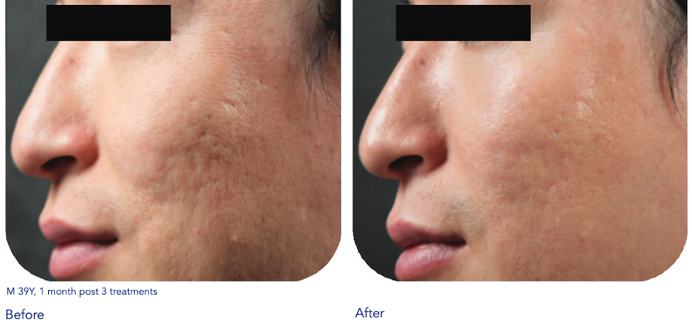 Microneedling with radiofrequency San Antonio - Sculpt Away