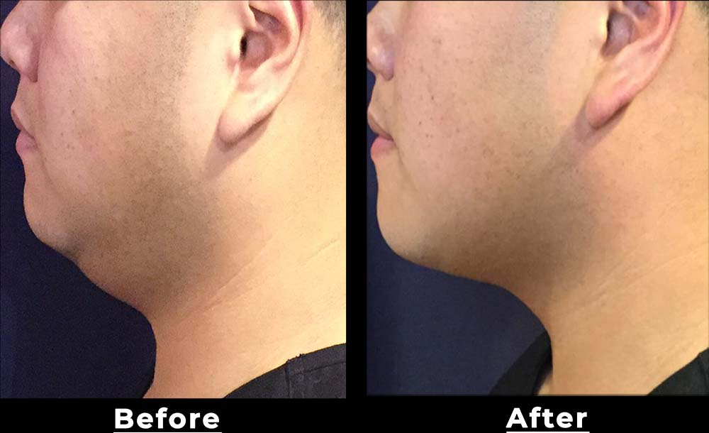 San Antonio double chin treatment