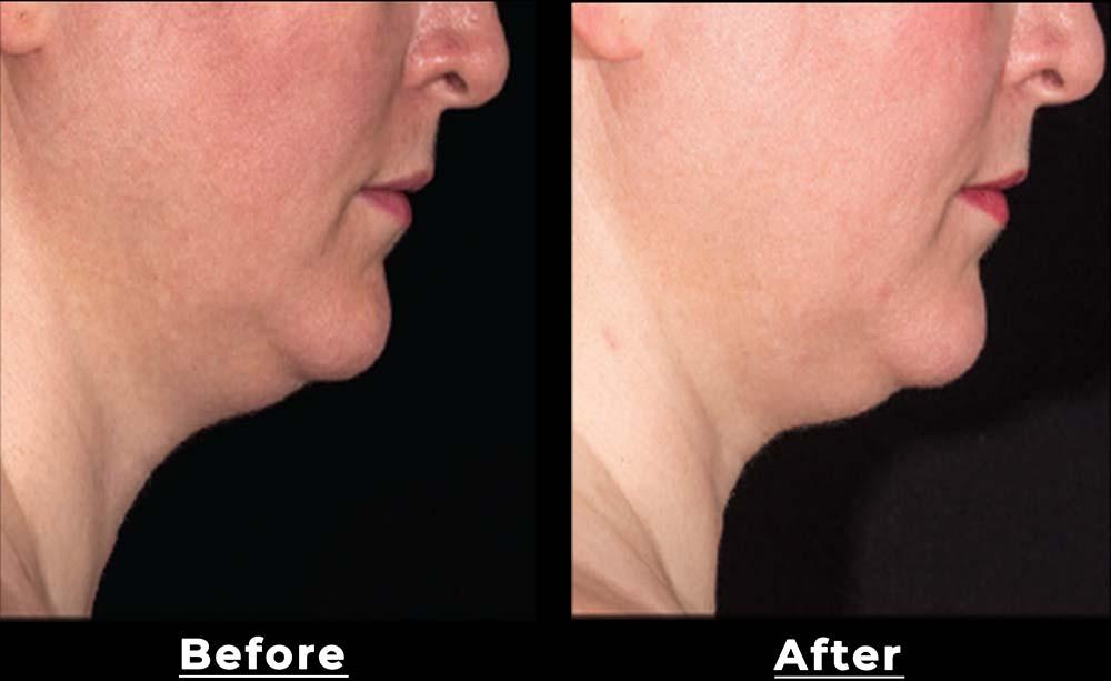 double chin treatment San Antonio